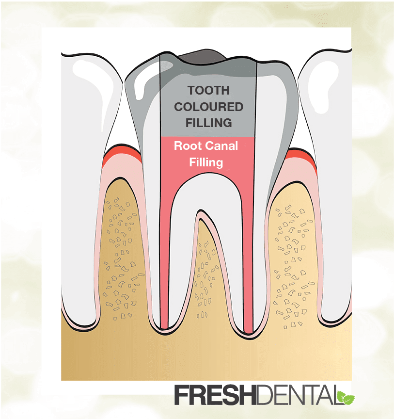 Root Canal Treatment in Concord NC   Fresh Dental